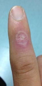 My infected finger, after three days